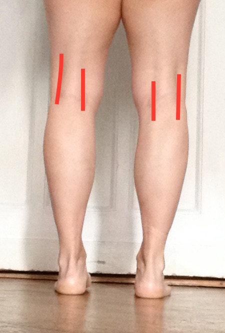 Align your Knee Pits